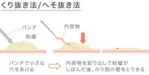 itakunai07 300x151 - しこりニキビが痛くないのは粉瘤や毛嚢炎かも!違いや原因は?治療法は手術のみ!