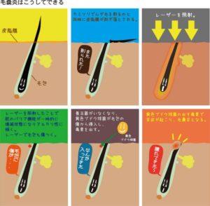 itakunai11 300x294 - しこりニキビが痛くないのは粉瘤や毛嚢炎かも!違いや原因は?治療法は手術のみ!