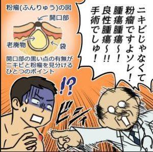 itakunai13 300x298 - しこりニキビが痛くないのは粉瘤や毛嚢炎かも!違いや原因は?治療法は手術のみ!