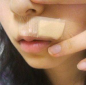 oronain11 300x296 - しこりニキビにオロナイン軟膏は間違いだった!改善効果どころか悪化の可能性も?